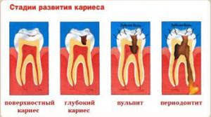 Стадии развития кираса, Лечение зубов в Абакане Дентал,