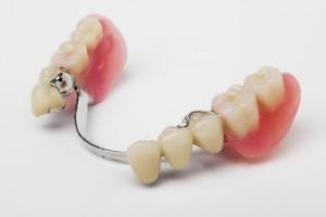Дентал Бюгельные съемные зубные протезы в Абакане
