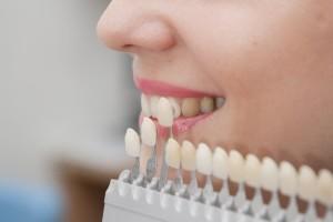 Дентал. Металлические зубные коронки в Абакане